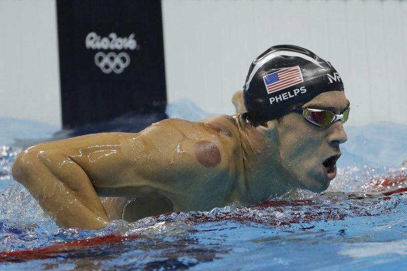 征戰里約奧運的游泳名將費爾普斯,身上明顯可見拔罐痕跡。(美聯社)