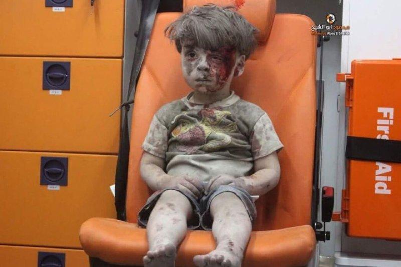 翁蘭.戴克尼許(Omran Daqneesh),敘利亞內戰,一個被炸得滿臉是血、不知道發生什麼事的小男孩(YouTube)