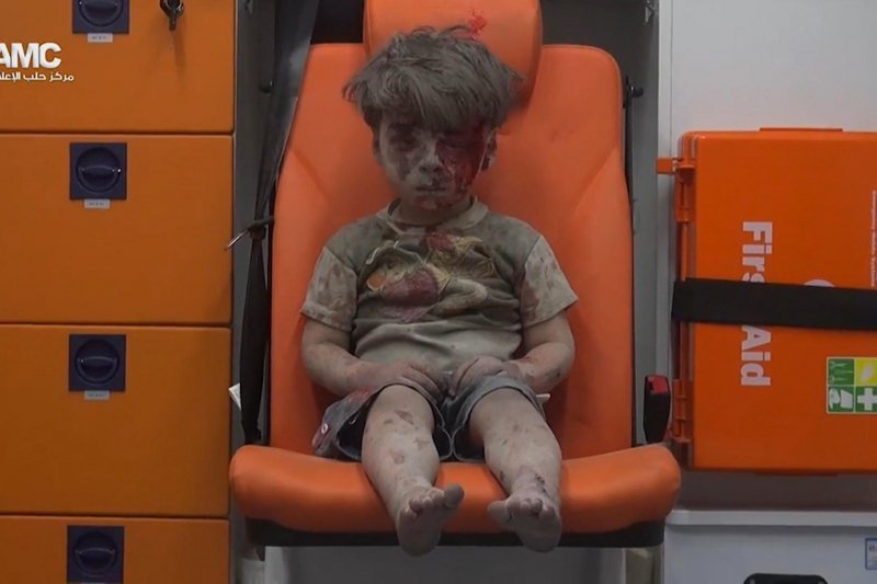 翁蘭.戴克尼許(Omran Daqneesh),敘利亞內戰,一個被炸得滿臉是血、不知道發生什麼事的小男孩(AP)
