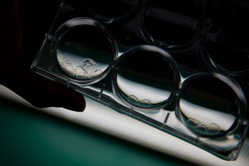 美國華府的國家兒童醫學中心(Children's National Medical Center)正在加緊研究茲卡病毒。(美聯社)