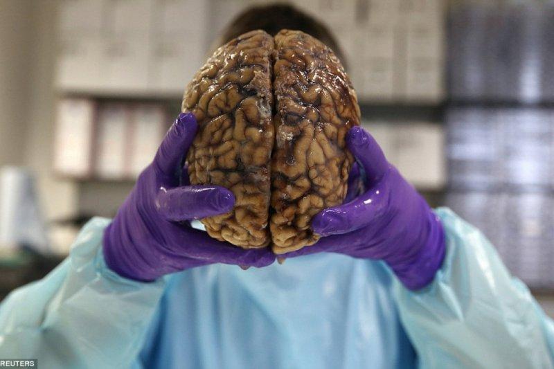 英國有一間銀行不是儲存金錢,而是人類的大腦。(圖/Dailymail)