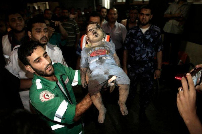 2014年夏天加薩走廊遭到以色列大規模轟炸,夜裡遭攻擊後送醫的加薩女嬰(美聯社)