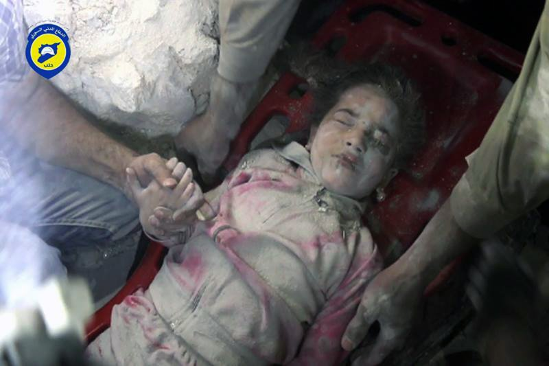 在阿勒坡郊區遭到空襲,被幸運救出的敘利亞兒童。(美聯社)