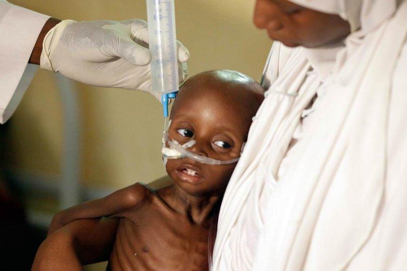 非洲大國奈及利亞爆發嚴重饑荒(AP)