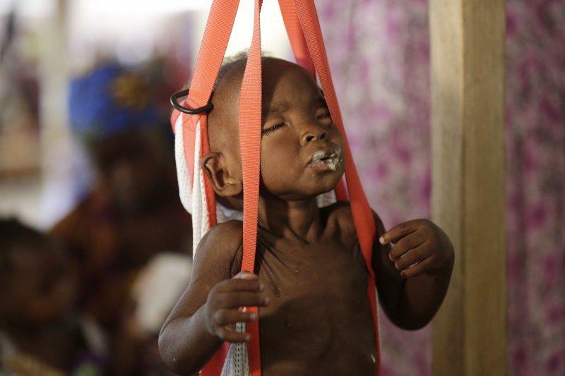 伊斯蘭極端武裝組織「博科哈蘭」肆虐西非奈及利亞,當地許多兒童極度營養不良(AP)