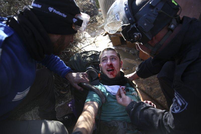 以色列警察2日強勢驅離阿莫納屯墾區的居民,一位被驅趕者滿臉是血。(美聯社)