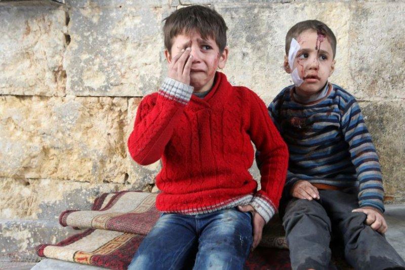 敘利亞戰場上的受傷男孩。(美國之音)