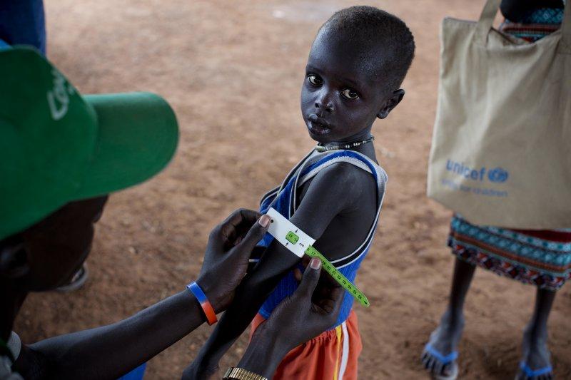 南蘇丹的兒童饑民(AP)