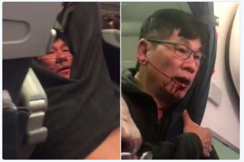 美國聯合航空周日(9日)晚間將一名69歲華裔乘客強行拖下機,過程中男子受傷,滿臉是血。(截圖自推特)