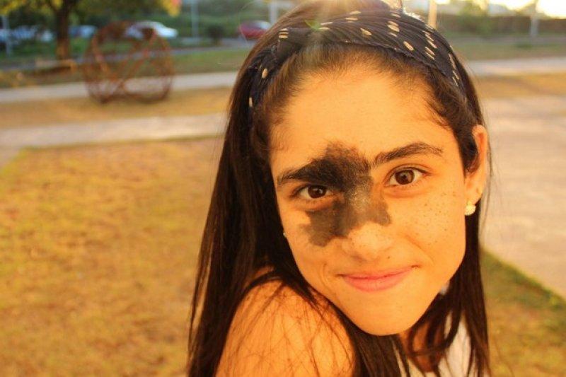 即便臉部有約四分之一被黑色胎記覆蓋,這個女孩仍然自信面對人生!(圖/遠見雜誌)