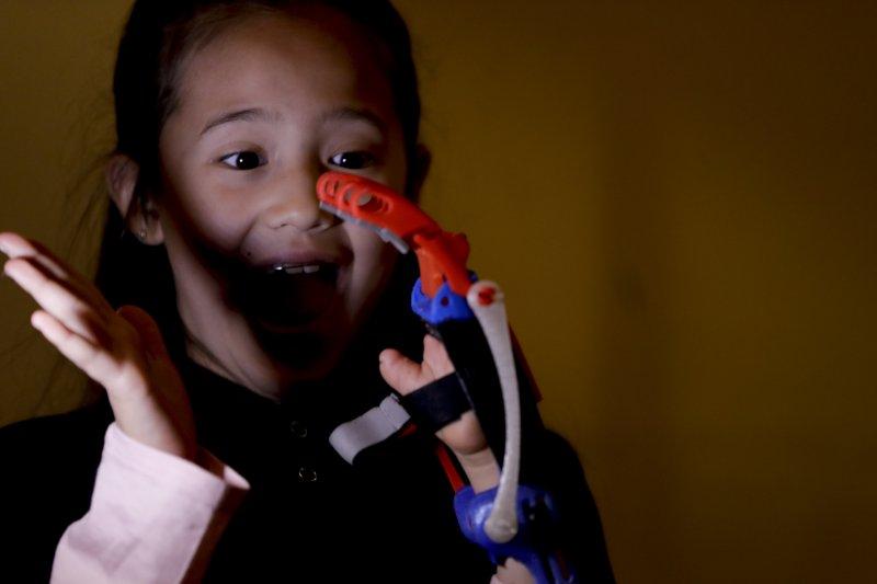 香織與她的3D列印義肢。(美聯社)