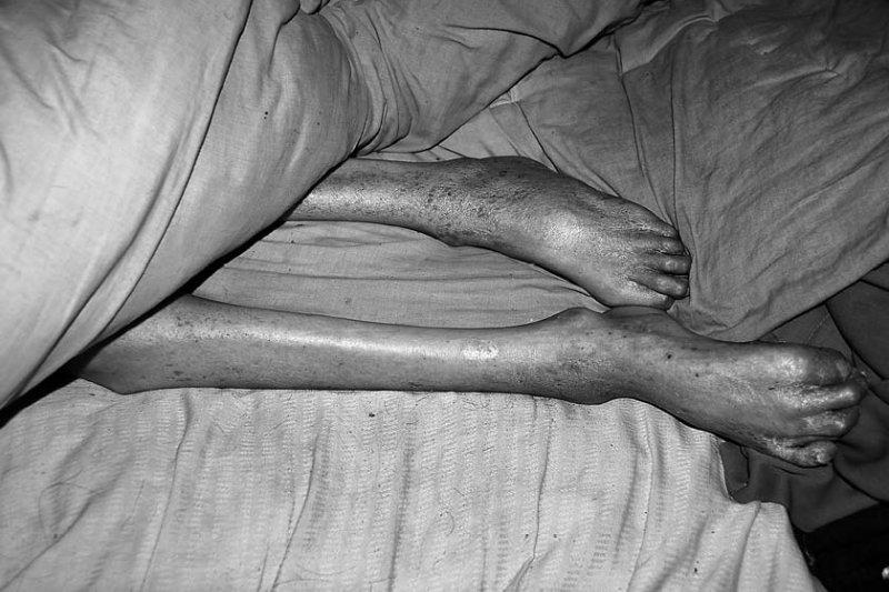 王多權上半身成人的軀幹之下,是萎縮成孩子的腿。(時報出版提供)