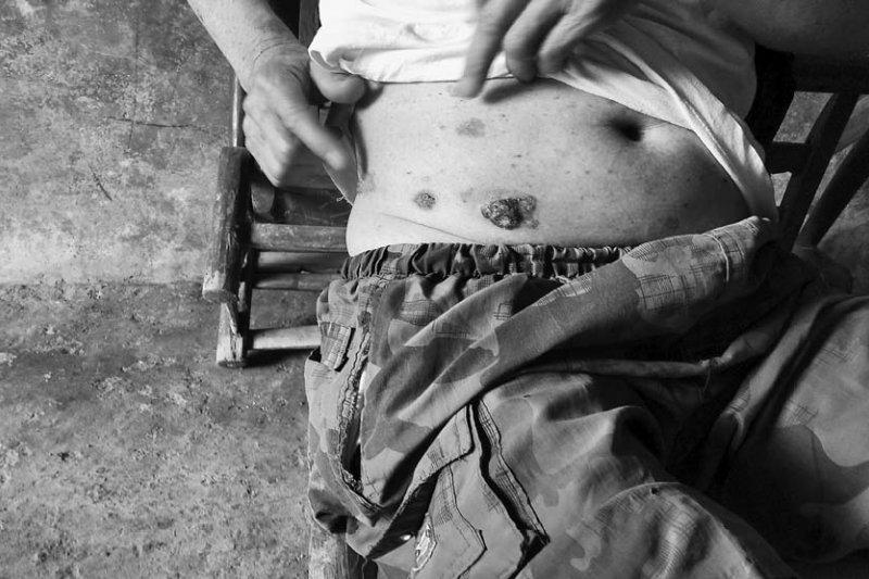 村民肚子上的皮膚癌瘡口,像是砷中毒開出的惡之花。(時報出版提供)