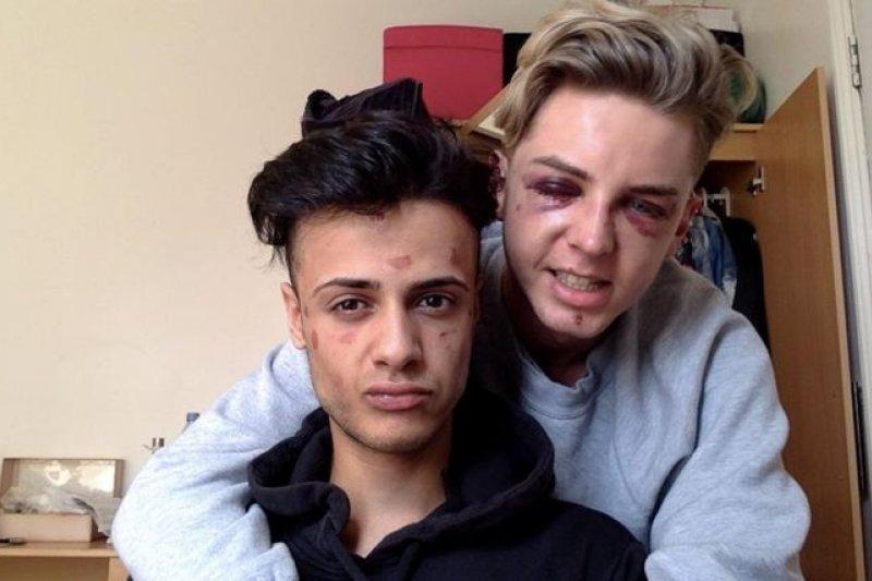 2016年5月,英國同志情侶詹姆斯和戴恩遭到恐同人士攻擊(BBC中文網)