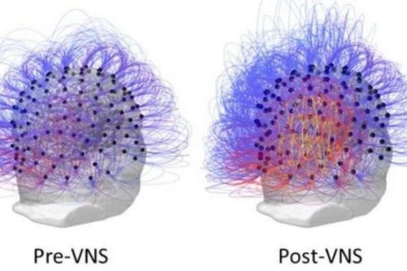 根據大腦的超聲波檢查,沒有受到刺激治療前的大腦(左)和之後的大腦(右)有顯著不同。(BBC中文網)