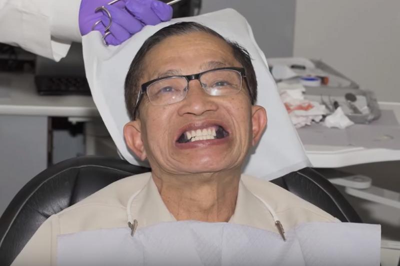 研究發現老人缺牙會提升失智風險,這項3D列印技術可改善國民口腔健康狀態。(示意圖,與本文無關/翻攝自youtube)