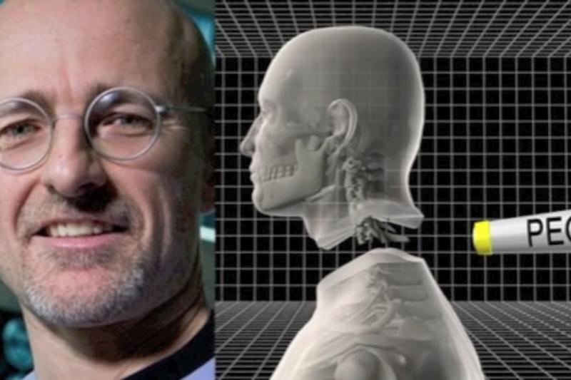 被媒體稱為「科學怪人醫生」的卡納維羅(Sergio Canavero)宣稱,他已完成了史上第一起換頭手術—不過手術對象並非活體。(翻攝Youtube)