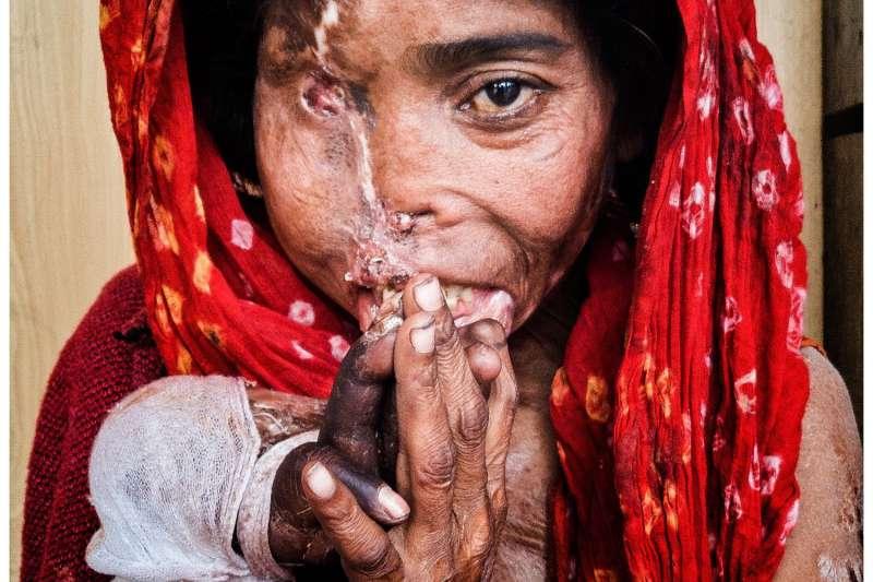 潑酸攻擊,在印度是僅次於強暴後,最嚴重的犯罪行為。(圖/吳建衡提供)