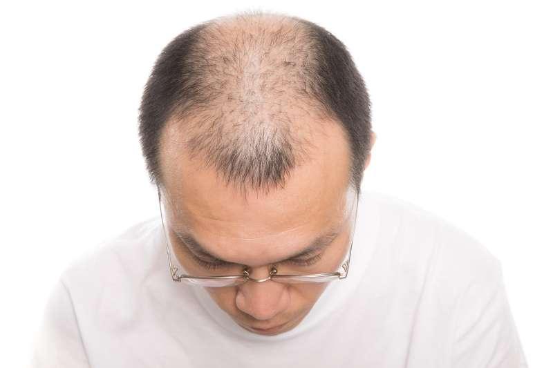 長不出頭髮的原因可能是錯誤的洗髮方式!掌握這些洗髮訣竅,人看起來更年輕。(示意圖非本人/pakutaso)