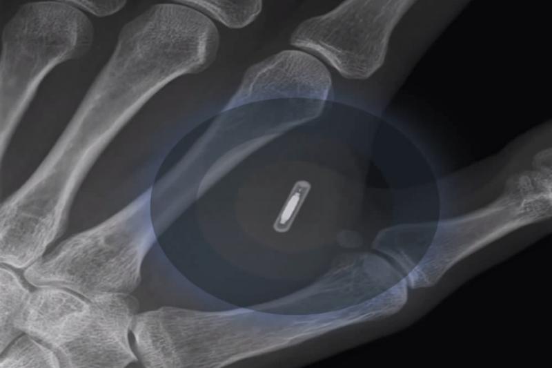 將微晶片植入皮膚就能免去攜帶鑰匙、信用卡和火車票的麻煩,你願意嘗試嗎?(圖/截自vanillabrief@Youtube)