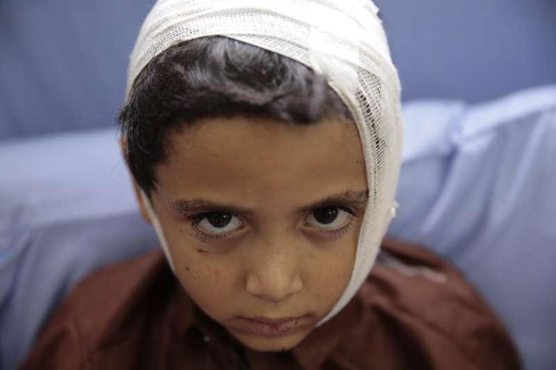 葉門北部薩達省的一輛校車9日遭到沙烏地阿拉伯領導的盟軍空襲,受傷的學童被送到醫院救治(AP)