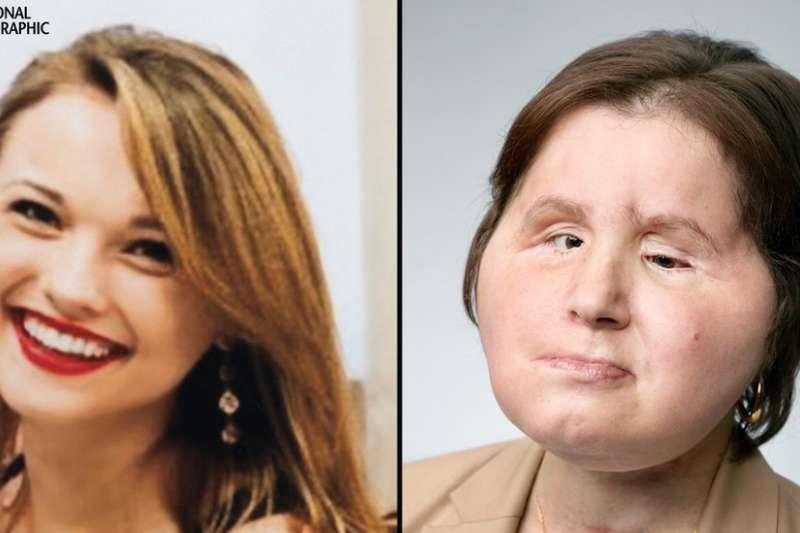 凱蒂受傷前(左)和接受臉部移植之後。(BBC中文網)