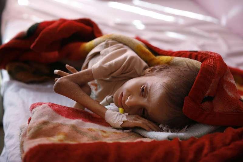 2016年1月24日,葉門一名營養不良的幼童躺在大城沙那(Sanaa)醫院的床上,等待救治(AP)