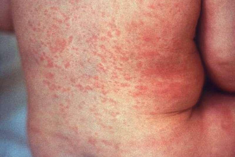 衛生福利部疾病管制署7日公布新增10例國內感染麻疹病例,其中8人分屬2起職場群聚感染,還有個案在可傳染期間曾到台北小巨蛋看歌手盧廣仲的演唱會。(資料照,取自美國CDC@wikipedia/公有領域)