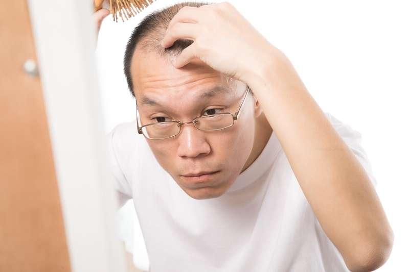 除了頭皮清潔不當會加遽掉髮發生外,曾石姿醫師指出,其實臨床上導致掉髮與禿頭元凶,主要還是與遺傳因素有關。(圖/サンライズ鈴木@pakutaso)