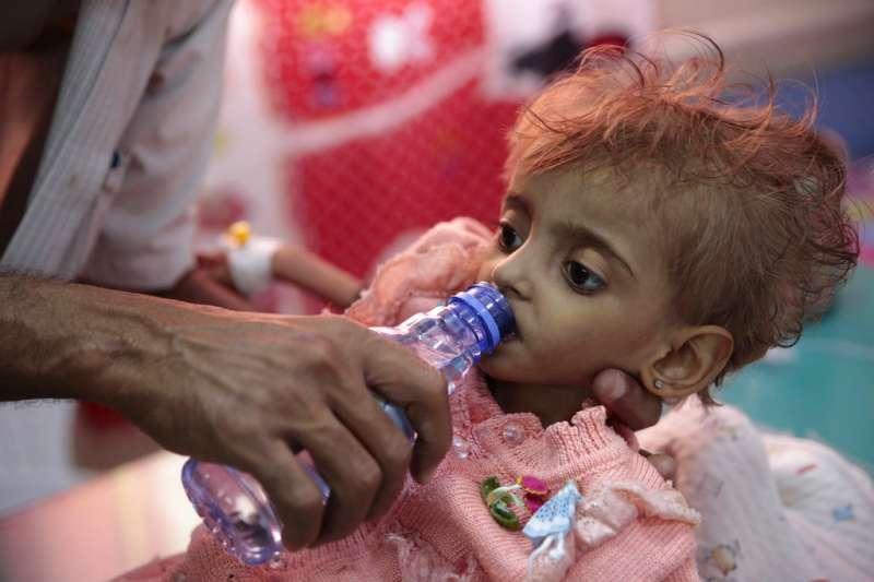 葉門內戰連年,孩童營養不良,聯合國警告,沙國領導的聯軍猛攻荷台達港,恐使葉門1200萬人恐陷入饑荒。(AP)
