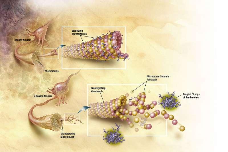阿茲海默症腦部病變(Wikipedia / Public Domain)