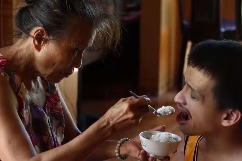 越南的橙劑受害者,身心嚴重畸型(截取自紀錄片《橙劑風暴》)
