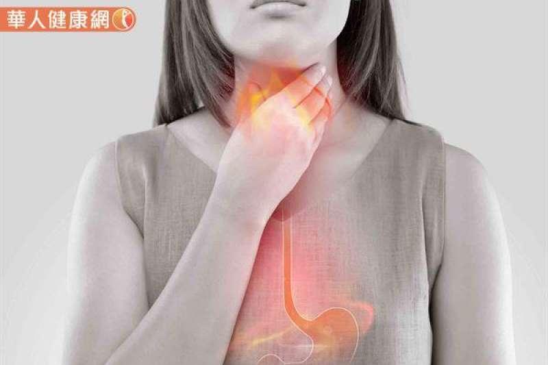 根據統計,目前台灣胃食道逆流盛行率約達20~30%!(圖/華人健康網)