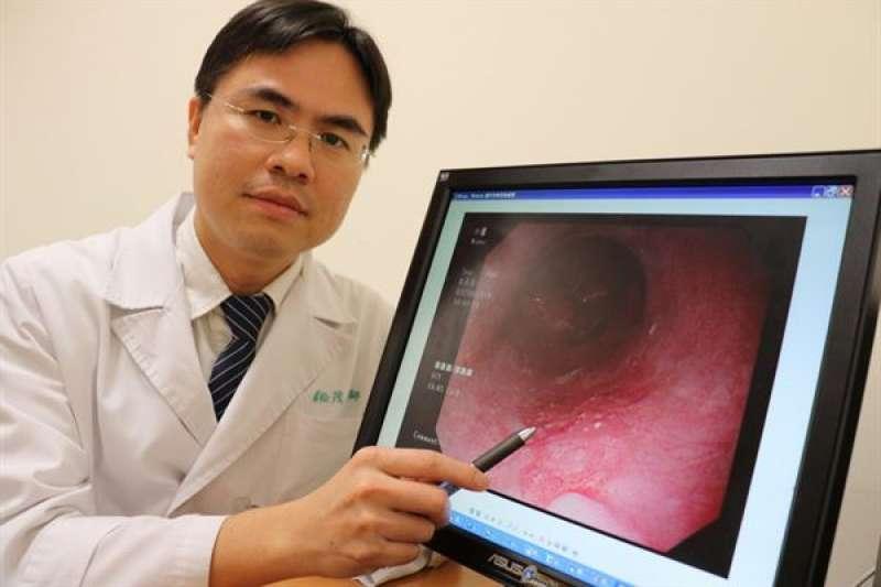 蔡松茂醫師提醒民眾,若抽菸、喝酒、吃檳榔,發生食道癌的機會是其他人的123倍,應盡早戒除。(圖/華人健康網)