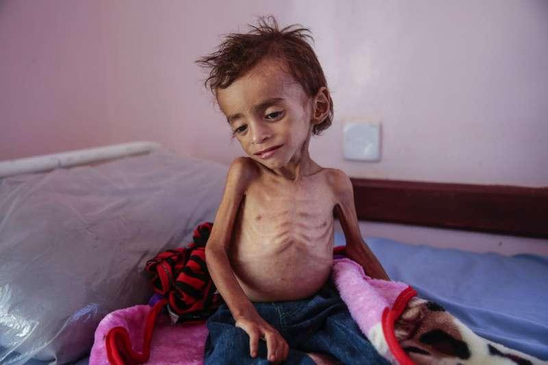 葉門內戰將近4年,幼童飽受飢荒之苦。(AP)
