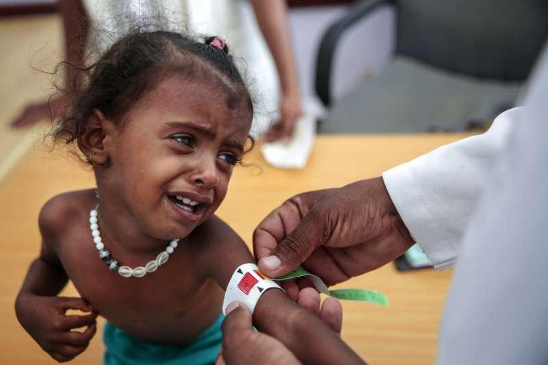 葉門內戰,幼童飽受飢荒之苦。(AP)