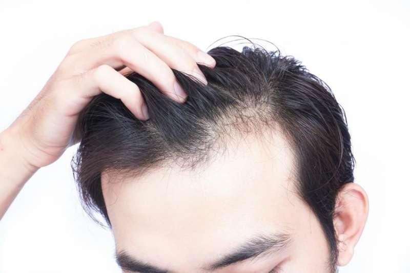 頻掉髮是哪裡出問題?中醫師破解3大落髮原因,不讓髮際線後退(圖/Pixabay)