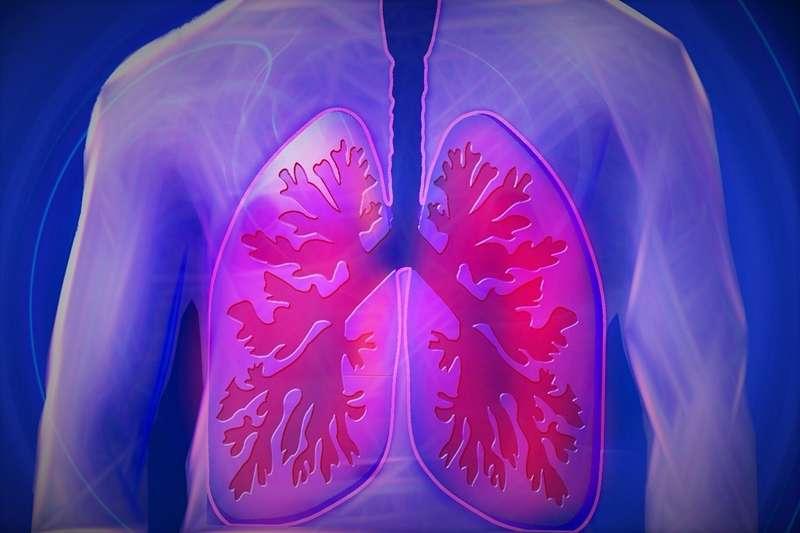 石綿除會對肺部健康造成影響外,還可能導致胃癌、大腸癌...等癌症。(Pixabay)