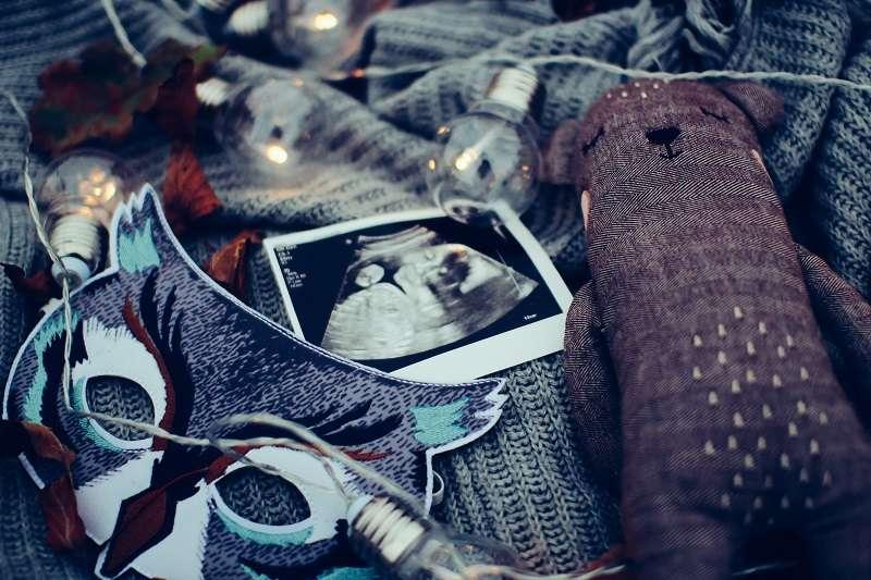 科學家已在胎盤的胎兒側發現了空氣污染微粒。圖片非當事嬰兒。(圖/取自unsplash)