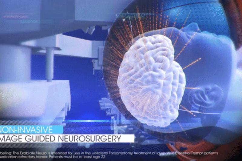 圖說:醫薩刀治療過程會先將病人固定於附在治療床上的頭盔,超音波能量經由頭盔傳遞到腦部進行加熱燒灼。(圖/截圖自彰濱秀傳醫院官網)