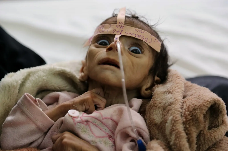 2016年3月22日,葉門嬰兒尤黛(Udai Faisal)罹患急性營養不良。葉門內戰經年,無數幼童飽受飢荒之苦。(美聯社)