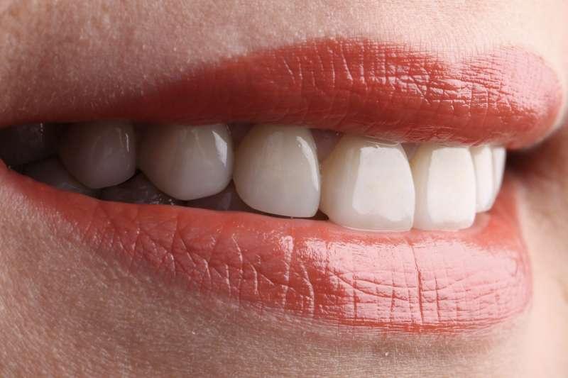潔白牙齒能建立良好的第一印象