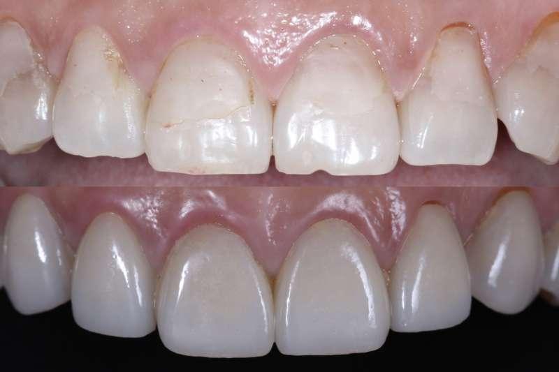 陶瓷貼片(下圖)可避免傳統樹脂貼片(上圖)不完整的補強方式及色素沈澱等缺點.jpg