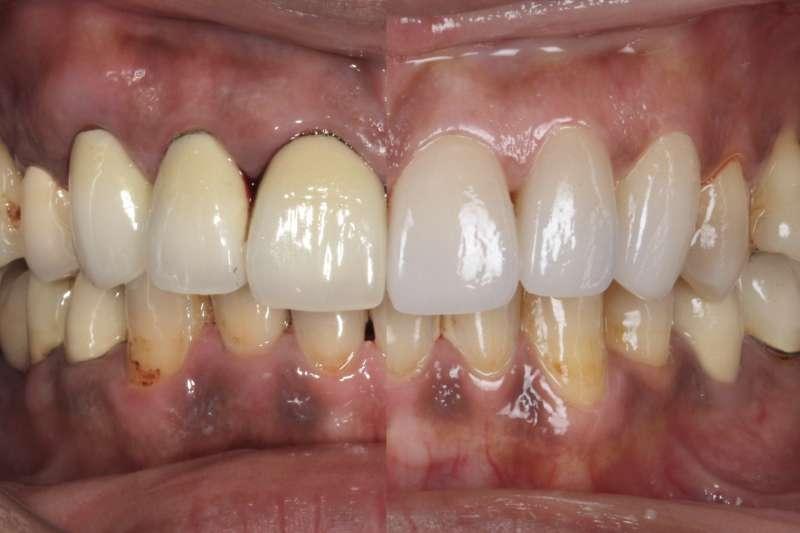 牙齒整齊但牙周色素沈澱仍相當不美觀(左圖),陶瓷貼片(右上圖)可讓笑容更加完美.jpg