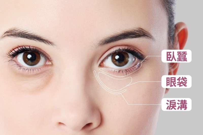 唯美可人的臥蠶,讓眼神隨時都能向粉絲們散發魅力(圖/群英整形外科診所提供)