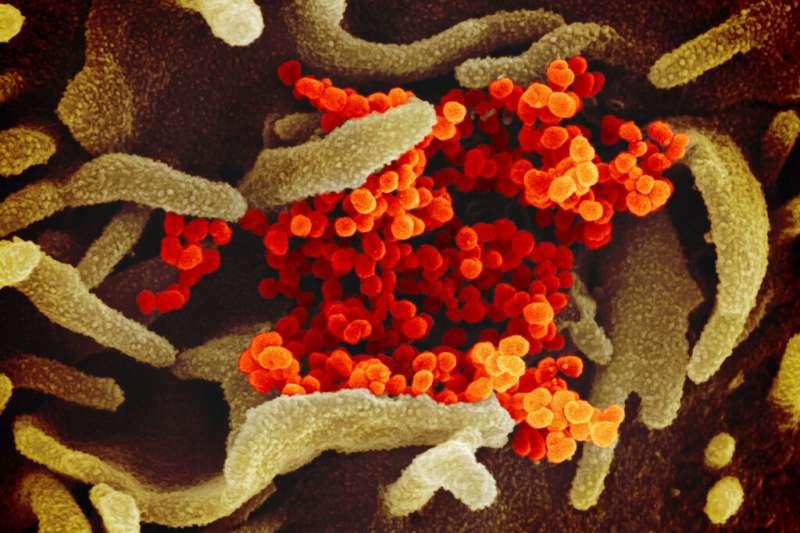 電子顯微鏡下的2019新型冠狀病毒(2019-nCOV)。(美聯社)