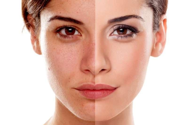 皮秒是現代更精準的肌膚治療選擇