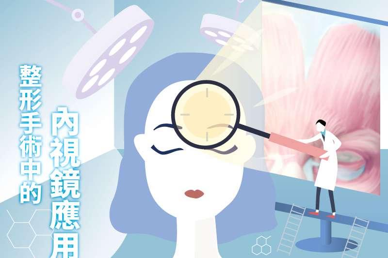 內視鏡誕生至今,已被醫學界廣泛應用,整形外科手術搭配內視鏡輔助,又有哪些「美」的火花?(圖:群英整形外科診所提供)