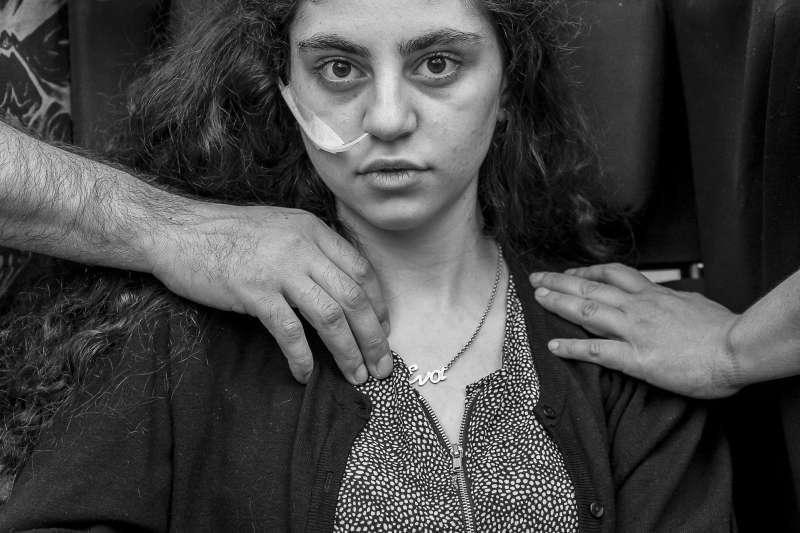 2020世界新聞攝影大賽,波蘭選舉報記者Tomek Kaczor所攝的放棄生存正候群患者少女,獲得「人物肖像類-單幅」一等獎。(AP)