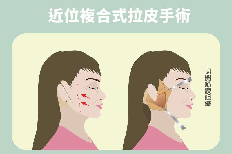 近位中下臉拉皮是沿著耳廓做切口,「近」一步將眼角至下顎角處的韌帶打斷以徹底鬆解筋膜組織後,再藉筋膜組織由深至淺將耳朵至鼻、唇間的表情區域往外上方拉緊做全層處理。(圖:群英整形外科診所提供)